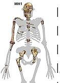 Australopithecus sediba: gefundene Teile der Skelette